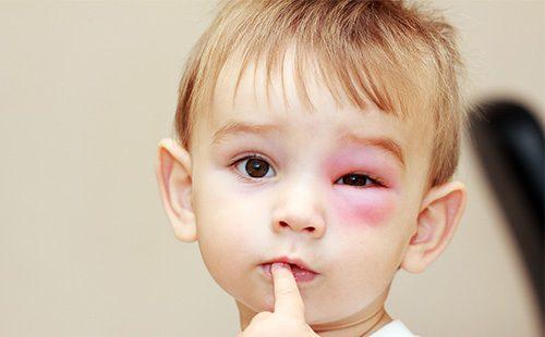 Мальчика укусила оса возле глаза